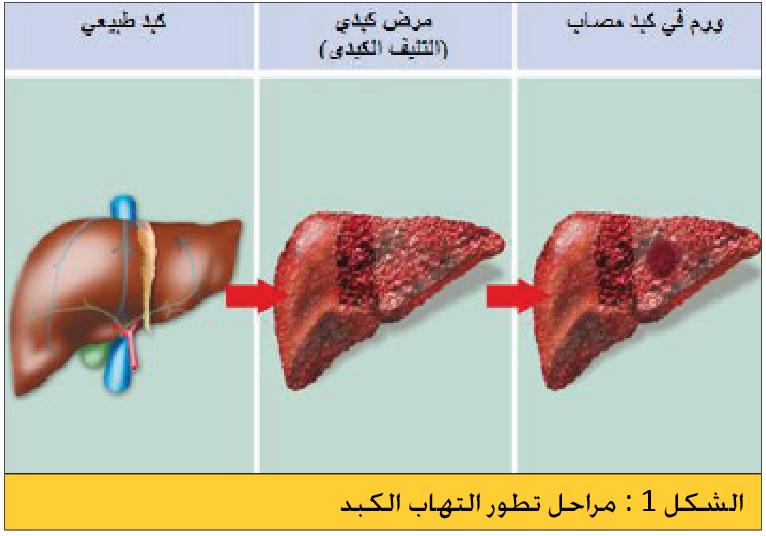 الالتهابات الكبدية الفيروسية